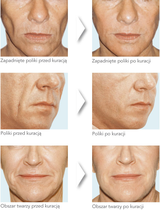 Modelowanie konturu twarzy – Crystalis